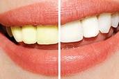 传统美牙与浮雕美牙